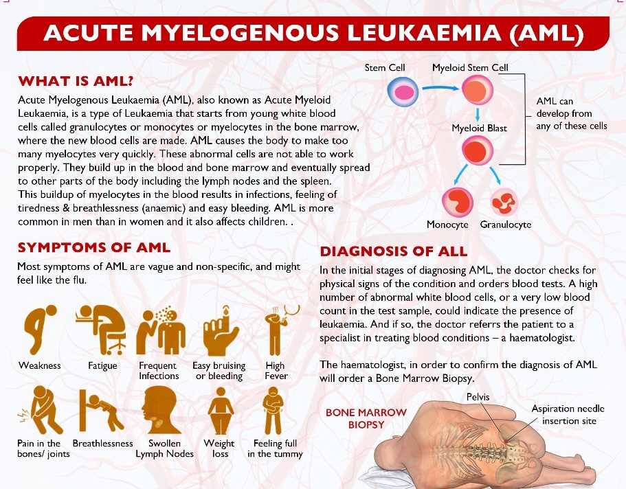 Acute Myelogenous Leukemia
