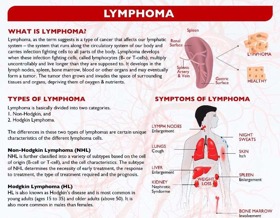 What is Lymphoma